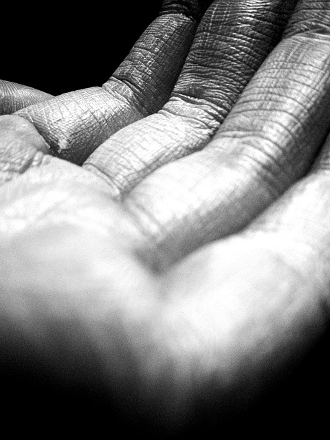 Tutto ciò che occorre sapere sulla Xerosi Cutanea Malattie