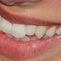 Inquinamento ambientale: dannoso anche per i nostri denti! Benessere