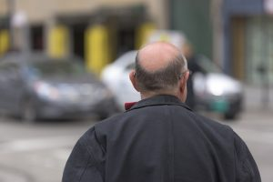 Metodi di trapianto dei capelli Rimedi