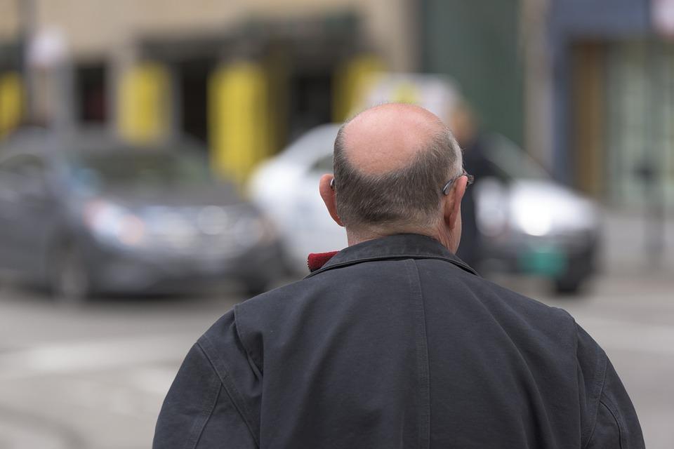 Rimedi naturali per evitare la perdita dei capelli