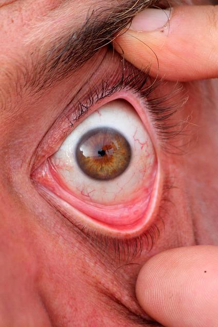 Capillari fragili: aree a rischio, cause e rimedi alimentari Benessere