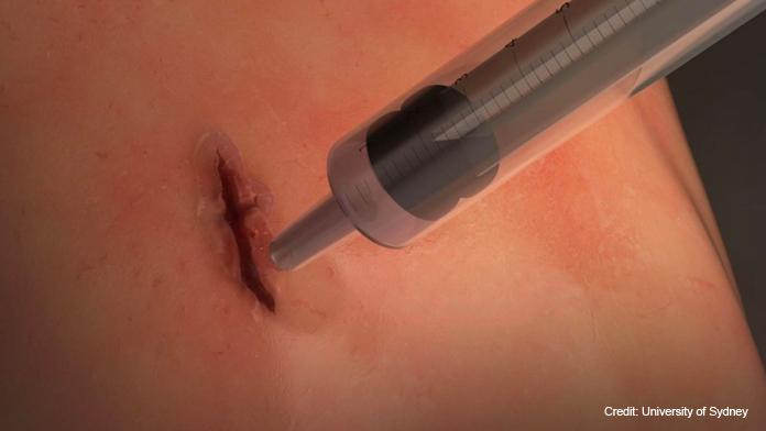 Nasce la super colla chirurgica che chiude le ferite in 60 secondi! News e curiosità