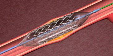 Problemi cardiaci: spunta nuova teoria sull'utilità degli stent Medicina