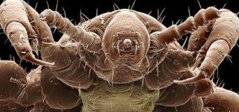 Come identificare e rimuovere i parassiti dal corpo
