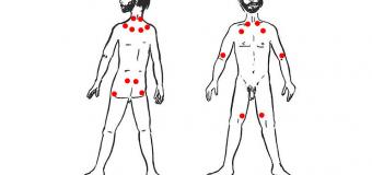 Fibromialgia diagnosticabile attraverso un esame sperimentale del sangue?