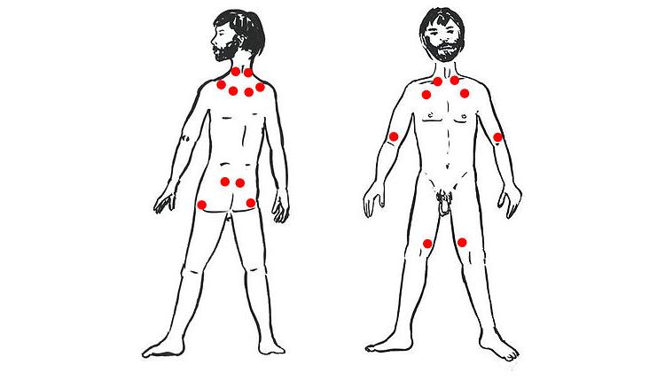 Fibromialgia diagnosticabile attraverso un esame sperimentale del sangue? Esami
