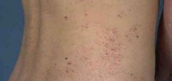 Malattia di Fabry: cosa c'è da sapere