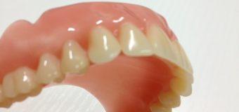 Sei falsi miti sulle protesi dentarie