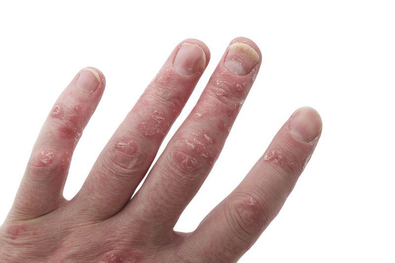 Che cos'è l'artrite psoriasica? Malattie