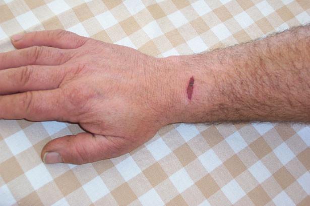 Piante che aiutano il processo di guarigione delle ferite Benessere