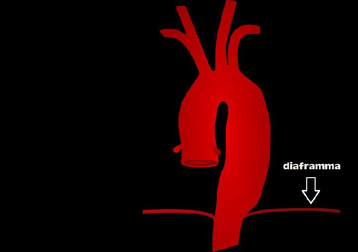 Che cos'è un aneurisma aortico? Malattie