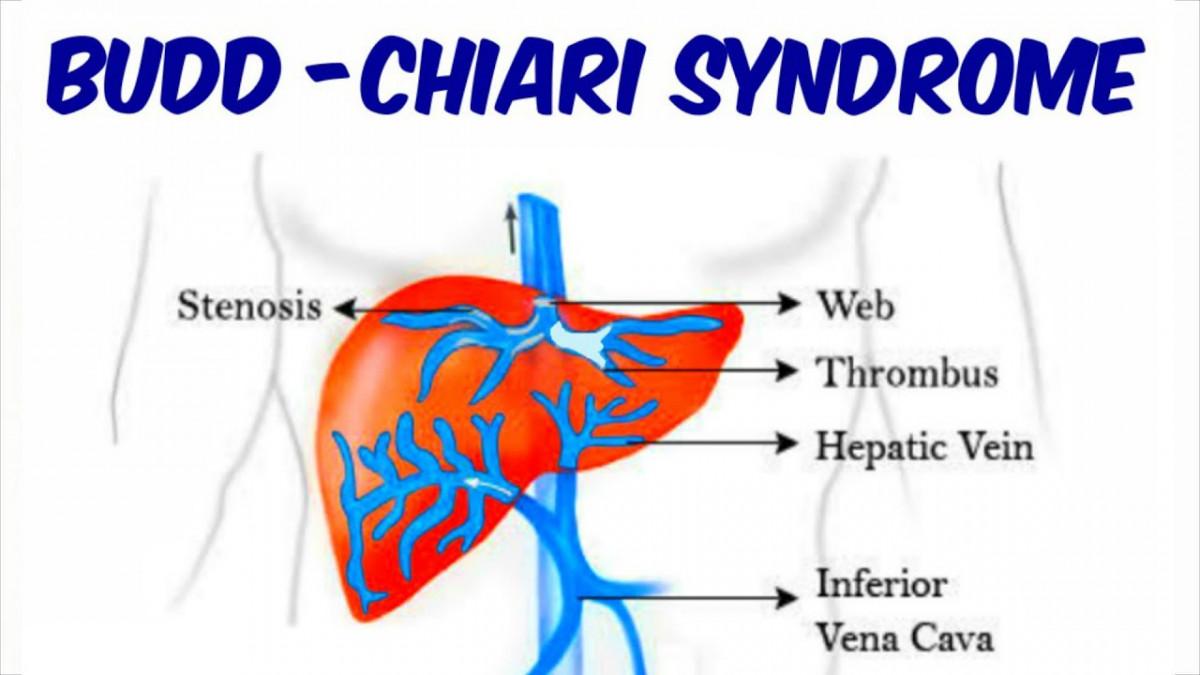 Che cos'è la sindrome di Budd-Chiari? Malattie