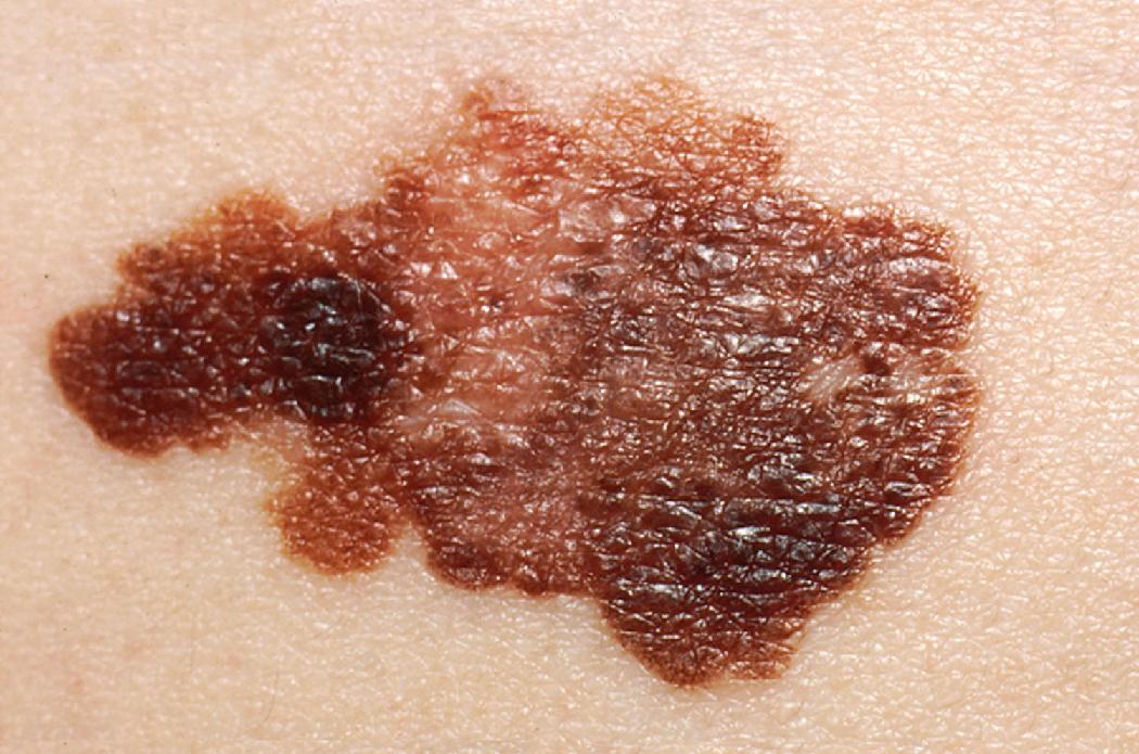 Le applicazioni per la diagnosi precoce del cancro alla pelle sono davvero efficaci? Malattie